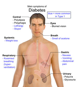 излечение от сахарного диабета 1 типа