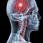 Клітинна терапія покращує стан хворих після інсульту