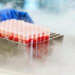 Доноров клеток и тканей могут обследовать на COVID-19